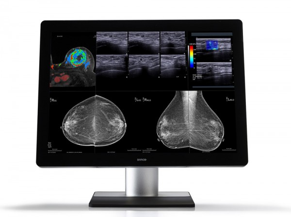 Diagnose_Mammografie_Display_Barco_Coronis_Unity