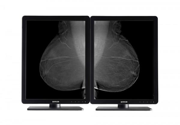 Diagnostic_Mammography_Display_Nio_5MP